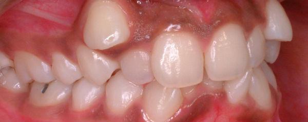 Tanden met ruimtegebrek