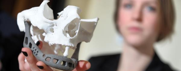 Een 83-jarige vrouw kreeg een 3D-geprinte onderkaak geïmplanteerd