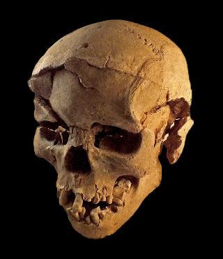 schedel kapot
