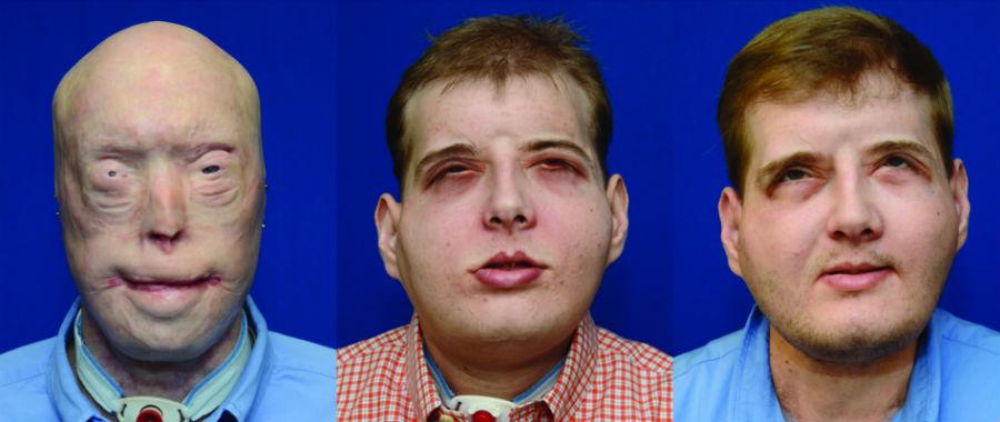 gezichtstransplantatie