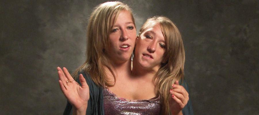 Siamese tweeling