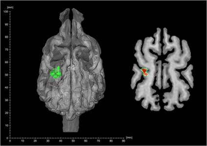 In bijzijn van een verwarmd paneel wordt op de linker somatosensibele schors verhoogde hersenactiviteit gemeten